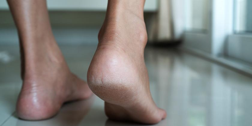 Solutions for dry and cracked heels